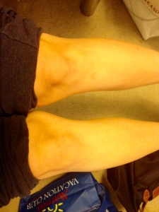 A yellow-tinted photo of my knees and calves due to bad lighting in my living room. Rolled up purple sweatpants are visible.
